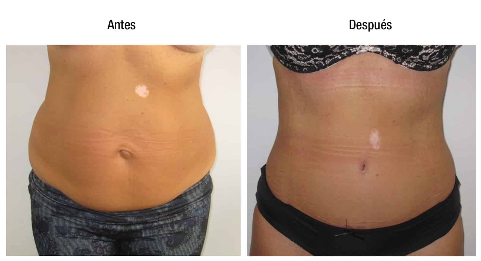 antes y despues liposuccion